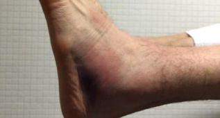 Nocioni puede con todo: jugó la final con el tobillo en este estado