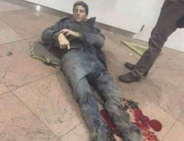 Sebastien Bellin herido en los atentados de Bruselas