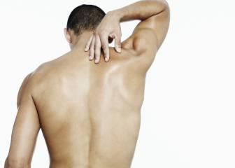 Por qué los granos en la espalda pueden ser más problemáticos que en la cara
