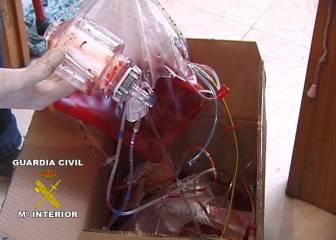 La AMA y la UCI se llevan la sangre fuera de España