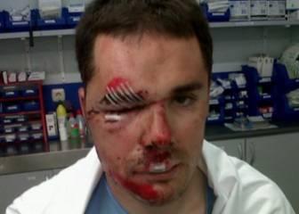 Markel Irizar muestra sus heridas de guerra