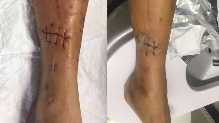 Rojas muestra su mejoría tras su dura caída en la Vuelta