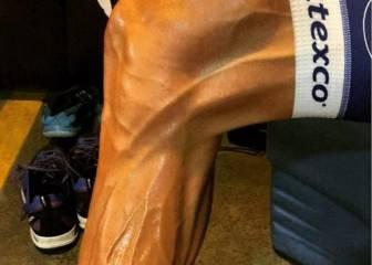 Tom Boonen muestra en sus piernas la dureza del ciclismo