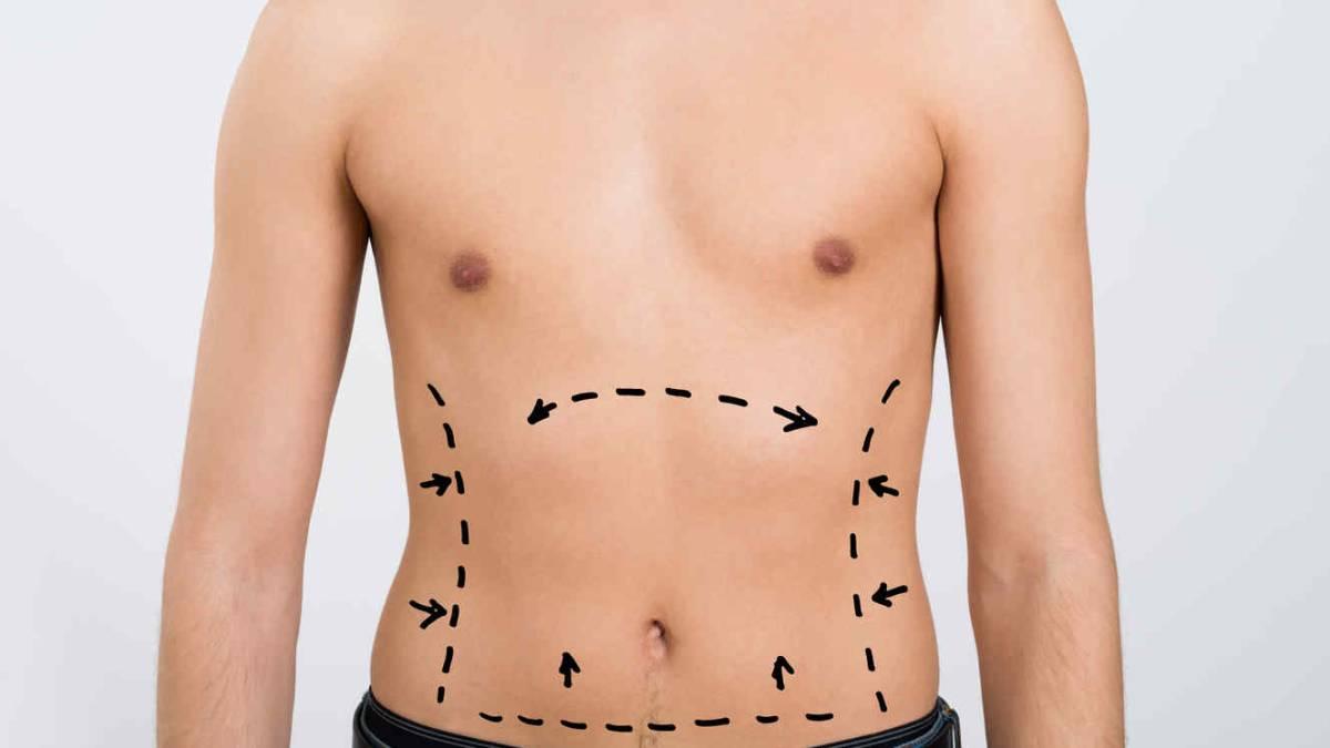 5 cirugías plásticas para que los hombres presuman de cuerpo 10 - AS.com