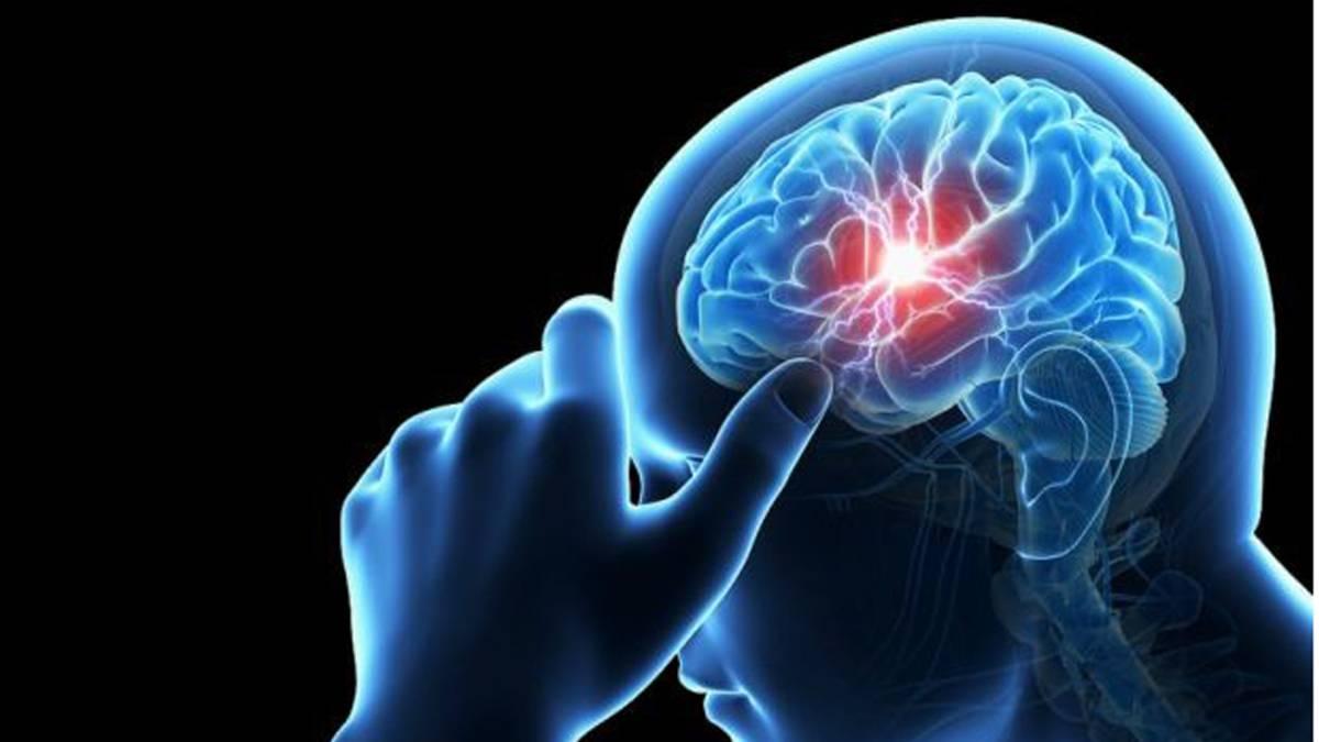 Cómo afecta al cuerpo un aneurisma cerebral - AS.com