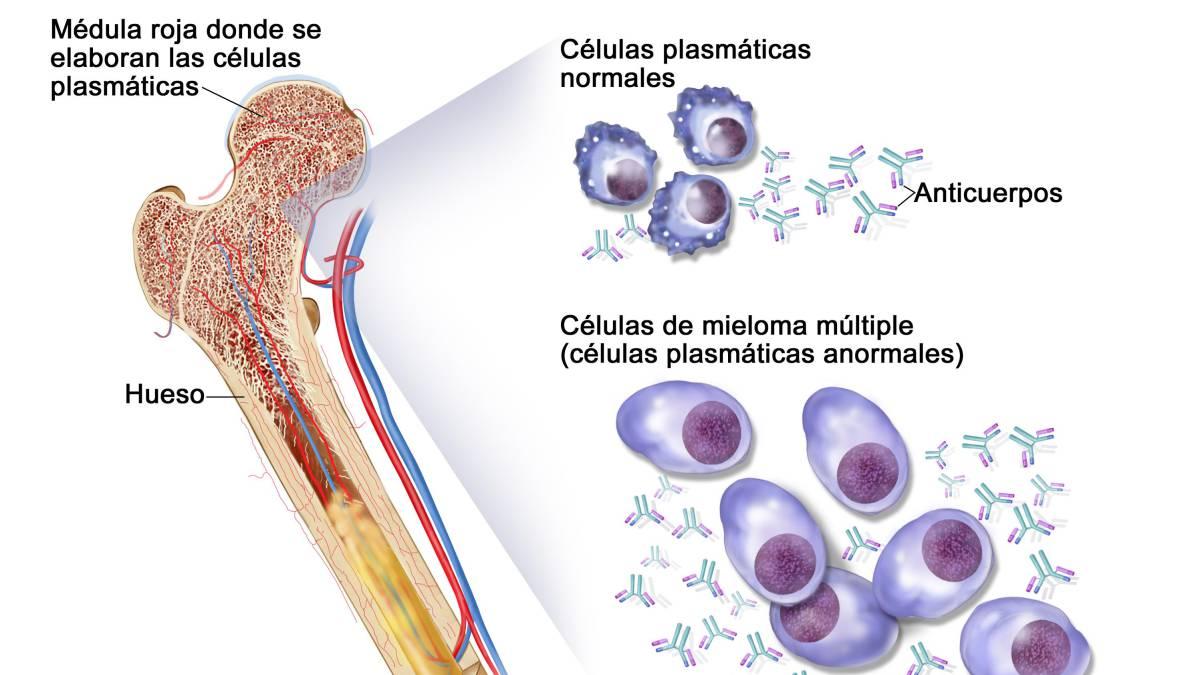 DÍA MUNDIAL: Mieloma múltiple: 2.000 casos nuevos al año en España ...