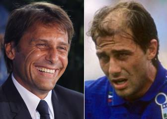 Top 10: Football's finest hair transplants