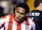 Falcao sufre una brecha en la frente por pisotón de Soldado