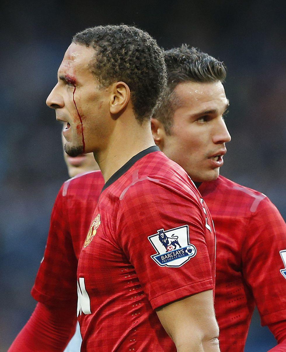 """Ferdinand: """"¡Qué tiro! Al menos, podría haber lanzado una libra"""""""