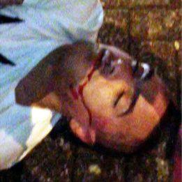 Danny Simpson, del Newcastle, inconsciente tras una pelea