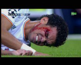 Pepe se hizo una brecha en una ceja tras chocar con Braaten