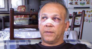 Un jugador rompe la nariz de su técnico a patadas en Bolívia