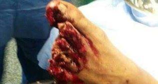 Accidente de Huracán: amputan cuatro dedos a un jugador