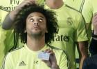 Marcelo ya no tiene cabestrillo y trabaja para llegar al derbi