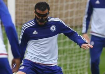 Pedro se rompe la nariz en su casa y jugará con máscara