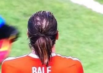 La alopecia de Bale 'preocupa' a los medios ingleses