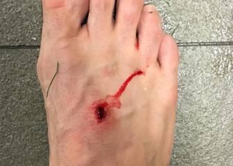 Filipe cuelga una foto con la herida que le provocó Suárez