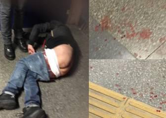 Un hincha del Nápoles fue apuñalado en Estambul