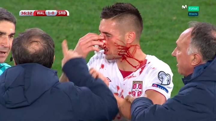 Taylor rompió la nariz a Tadic de un patadón involuntario