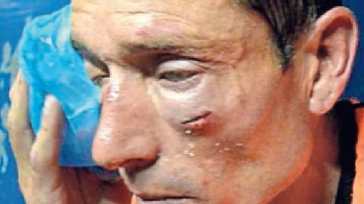 El árbitro Claudio Elichiri fue golpeado por hinchas y jugadores en un partido de la tercera división.