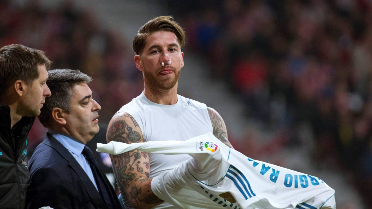Le rompen la nariz a Sergio Ramos al enfrentar al Atlético
