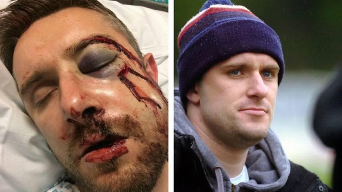 Escalofriante lesión de un jugador en la cuarta inglesa - AS Chile