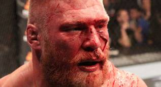 Los tres puntos débiles de Brock Lesnar en su regreso al UFC 200