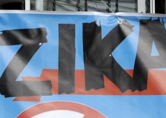 Zika: nace en España el primer bebé con microcefalia