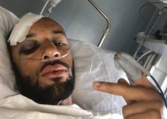 Brutales heridas de Ellington: 'No sé cómo seguimos vivos'