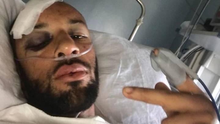 Brutales heridas de Ellington: \