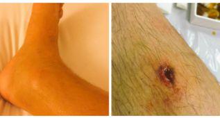 Las heridas con las que Biaggi afrontó la cita de Sepang