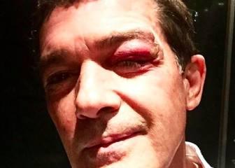 Antonio Banderas sufre un percance en el rodaje de 'Stoic'