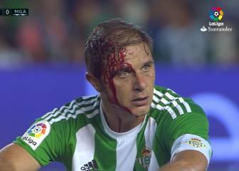 Joaquín acabó con la cara ensangrentada tras un golpe