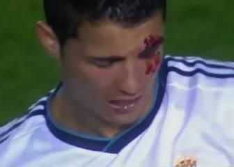 De Tassotti a Ibra y Cristiano: codazos salvajes en el fútbol