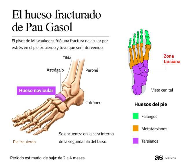El hueso fracturado de Pau Gasol.