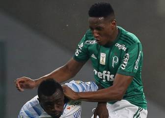 El colombiano Yerry Mina, con posible fractura del pie