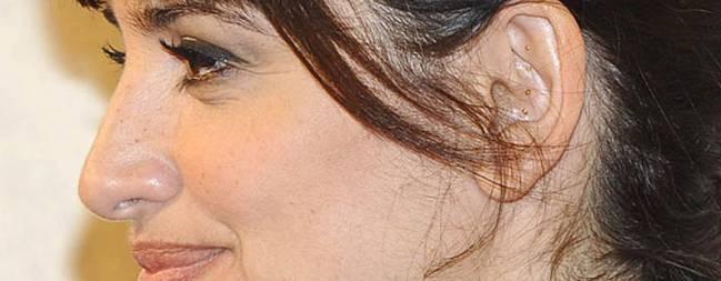 Auriculoterapia con blaines para adelgazar
