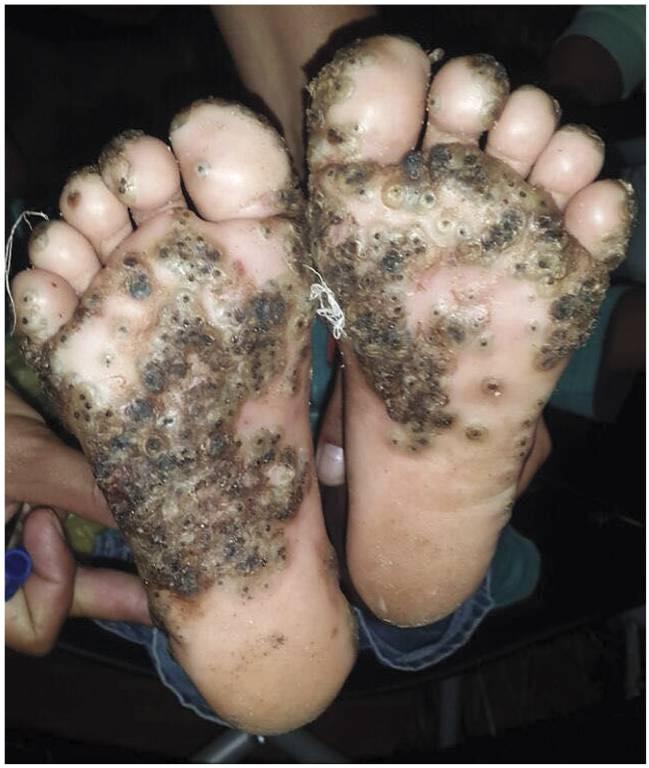 parásitos piel