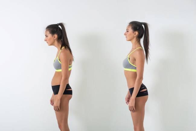 sindrome hombros caidos
