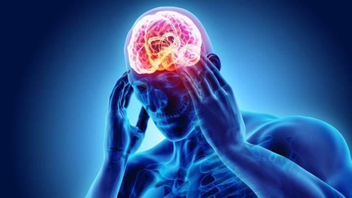 La ansiedad, depresión o estreñimiento estarían asociados a la migraña
