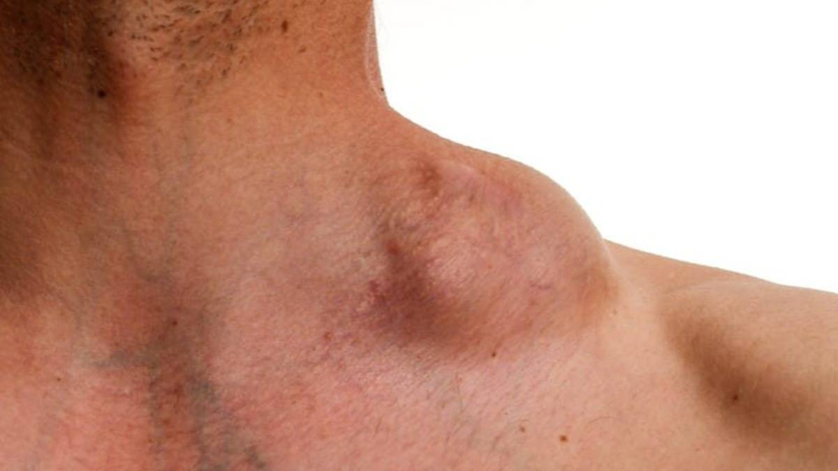 cancer vaccine sarcoma