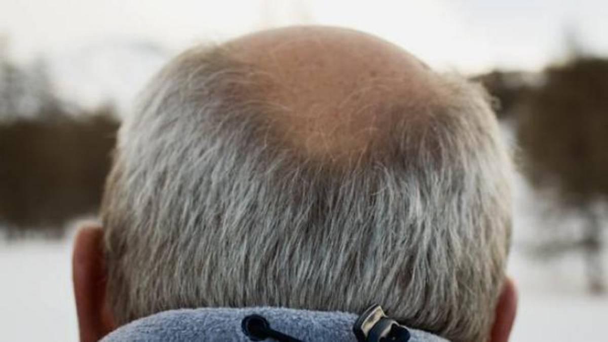 Лысые мужчины рискуют умереть от коронавируса