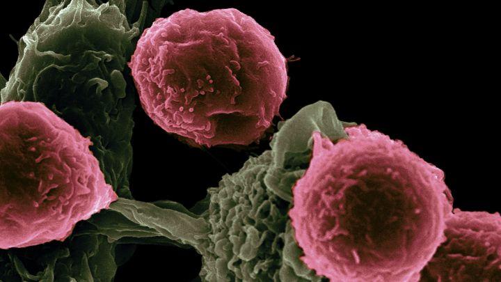 Un estudio del CSIC encuentra la forma de frenar el avance de los tumores