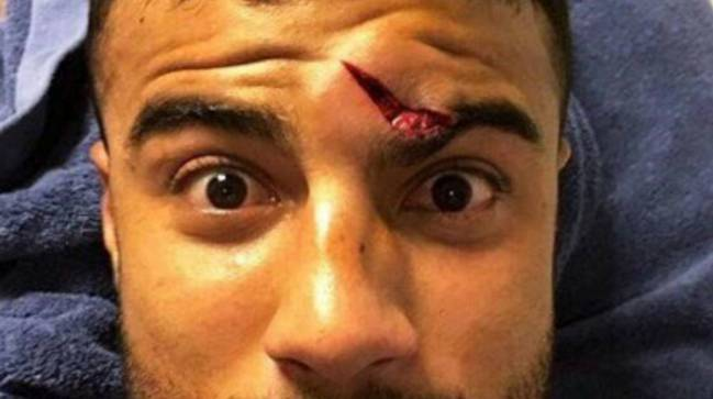 Barcelona Athletic Rafinha Suffers Nasty Gash To The