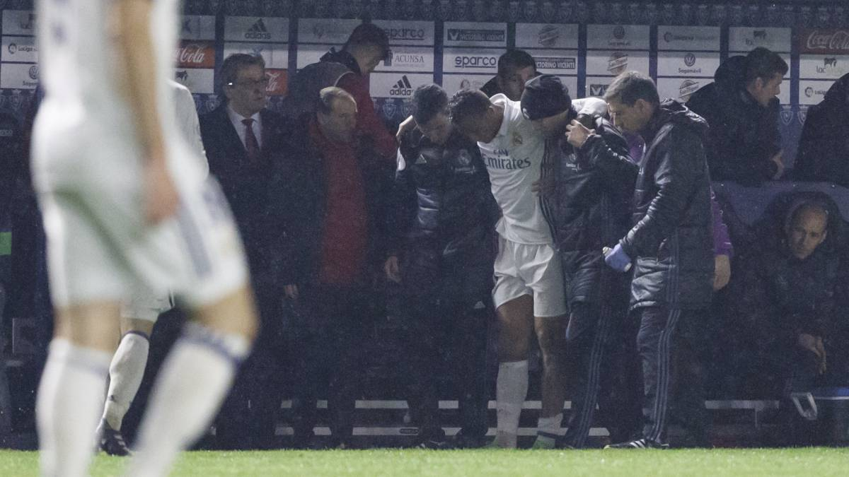Real Madrid's Danilo shows off wounds from David García tackle