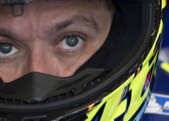 Rossi determined to race despite 'severe' pain
