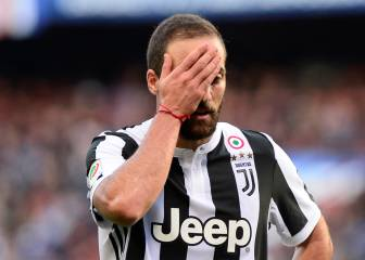 Juve striker Higuain undergoes hand surgery