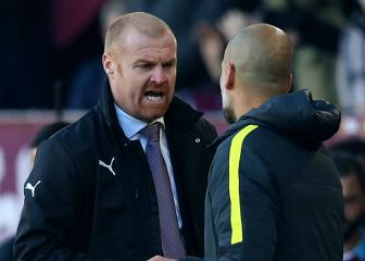 Ginger Pep? Klopp says Burnley achievements compare to City's