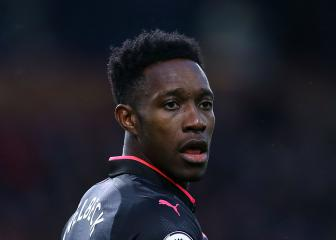 Arsenal forward Welbeck admits injury fears in Ostersunds
