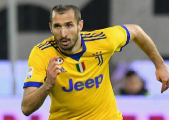 Juventus clear Chiellini of serious injury
